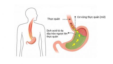 Những điều cần biết về bệnh trào ngược dạ dày thực quản