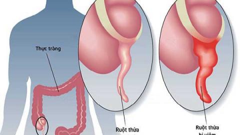 Viêm ruột thừa cấp: Nguyên nhân, triệu chứng