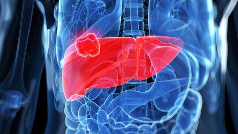 Tầm soát ung thư gan là gì, tại sao cần tầm soát