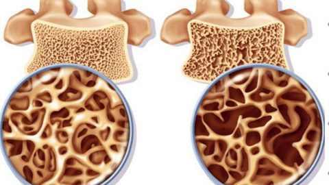 Bệnh loãng xương – dấu hiệu nhận biết, cách điều trị