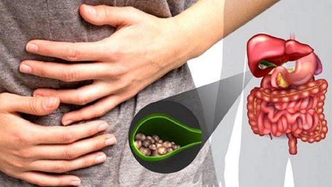 Các phương pháp điều trị sỏi mật tối ưu nhất hiện nay