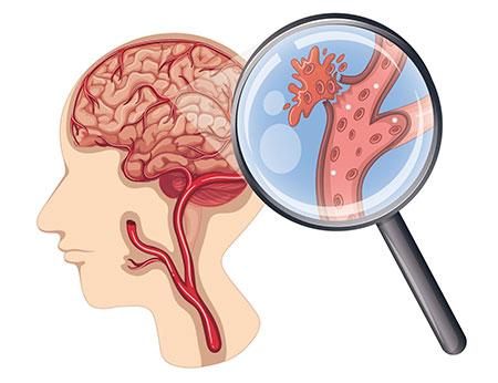 Đột quỵ não để lại những di chứng gì?
