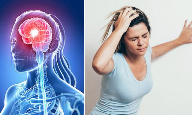 Đột quỵ não nguyên nhân chính gay tử vong và những biến chứng nguy hiểm khác