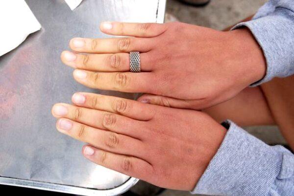 Biểu hiện đặc trưng của hội chứng raynaud là sự thay đổi màu da