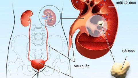 Lấy sỏi thận qua da – phương pháp điều trị sỏi thận to không cần mổ mở
