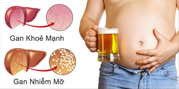 Rượu bia là nguyên nhân chính gây gan nhiễm mỡ độ 2