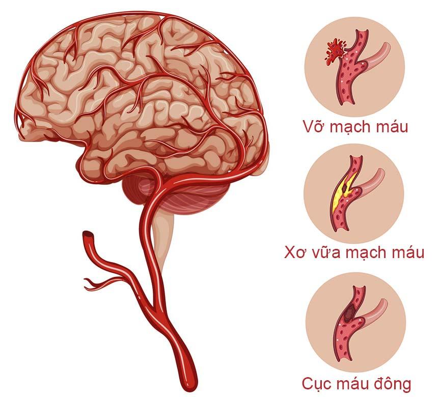 Nguyên nhân chính gây đột quỵ não là gì?