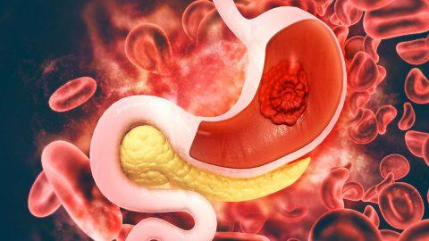Những lưu ý khi tầm soát sớm ung thư dạ dày