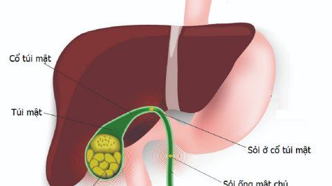 Nội soi lấy sỏi mật – giải pháp hiệu quả trong điều trị