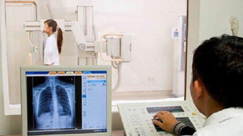 Chụp X quang phổi cho bé có hại không?