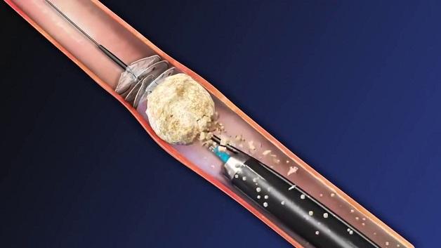Tán sỏi nội soi ngược dòng bằng laser mang lại hiệu quả cao, an toàn