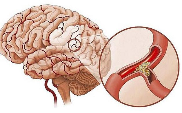 Thiếu máu não là tình trạng máu cung cấp lên não không đủ, ảnh hưởng tới hệ thần kinh