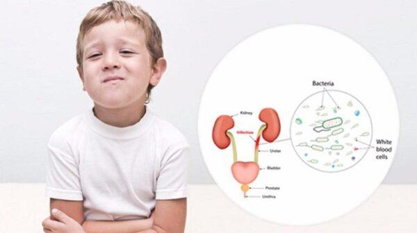 Viêm tiết niệu ở trẻ nhỏ nếu không được phát hiện sớm và điều trị kịp thời sẽ dẫn đến những biến chứng nguy hiểm