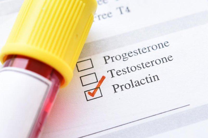 Xét nghiệm Prolactin có thể thực hiện vào bất cứ ngày nào