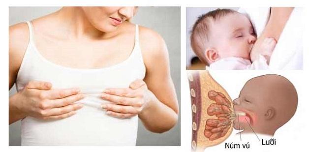 Khi bị áp xe vú, mẹ thường bị đau rát trong quá trình cho con bú