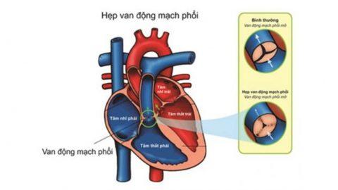 Các mức độ hẹp van động mạch phổi và cách điều trị