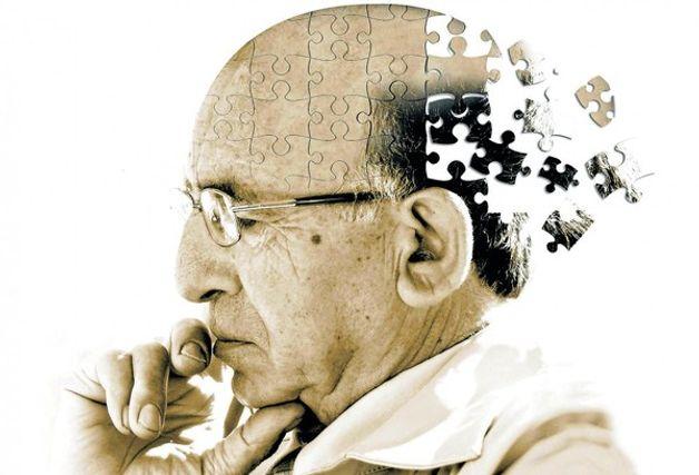 Suy giảm trí nhớ không phải là bệnh mà là hội chứng lâm sàng