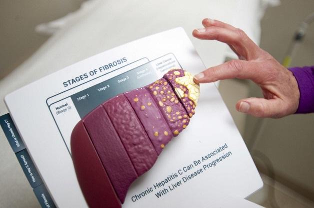 Bệnh viêm gan C gây biến chứng gì?