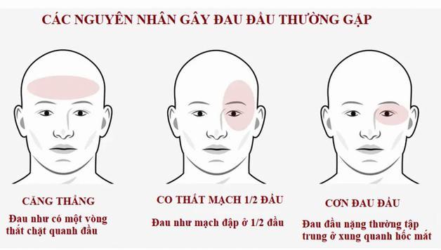 Nguyên nhân gây nhức đầu mãn tính