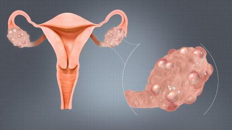 Phẫu thuật cắt buồng trứng có thai được không?