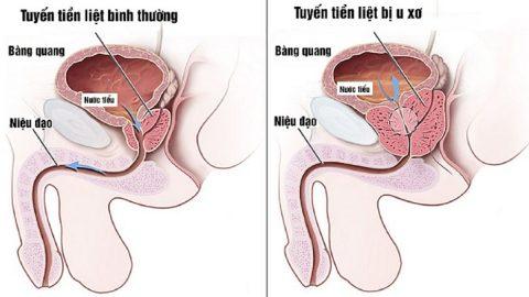 Chữa u xơ tuyến tiền liệt bằng phương pháp nào hiệu quả?