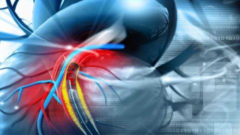 Co thắt động mạch vành: Bệnh lý nguy hiểm