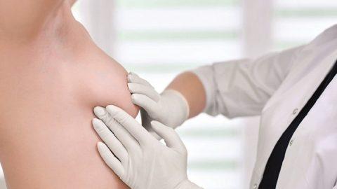 Cách điều trị áp xe vú hiệu quả cho phụ nữ sau sinh