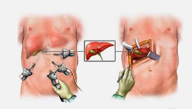 Có 2 phương pháp chính để điều trị sỏi mật là mổ hở và mổ nội soi lấy sỏi