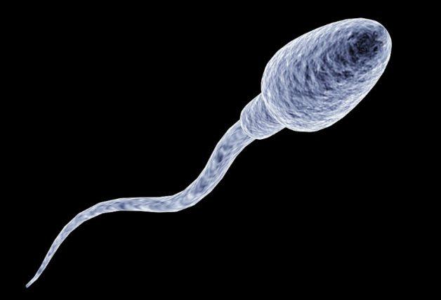 Đây là hình dạng tinh trùng bình thường. Nếu tinh trùng có hình dạng khác, bất thường về đầu hoặc đuôi thì sẽ được xếp vào nhóm tinh trùng dị dạng