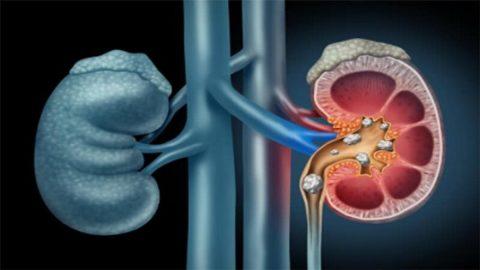 Phẫu thuật lấy sỏi qua nội soi hông lưng sau phúc mạc