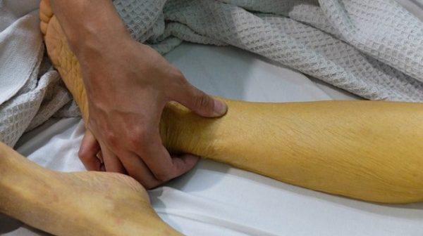 Viêm gan C ở giai đoạn nặng gây vàng da nhiều