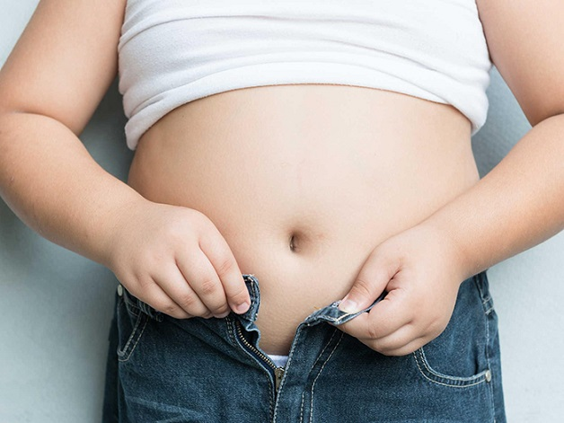 Béo phì có thể gây xơ vữa động mạch cảnh