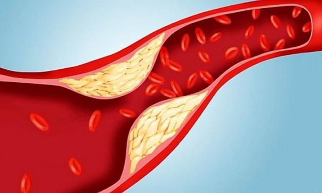 Xơ vỡ động mạch là một trong những nguyên nhân gây các bệnh van tim