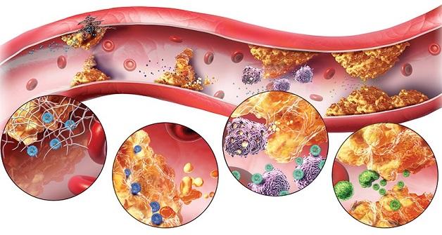 Rối loạn lipid là nguyên nhân hàng đầu gây xơ vữa động mạch vành