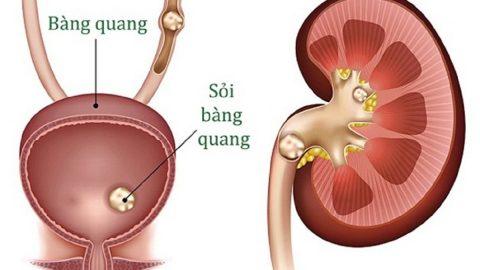 [Tổng hợp] Các phương pháp nội soi lấy sỏi đường tiết niệu