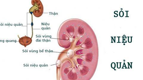 Tổng hợp các phương pháp phẫu thuật nội soi