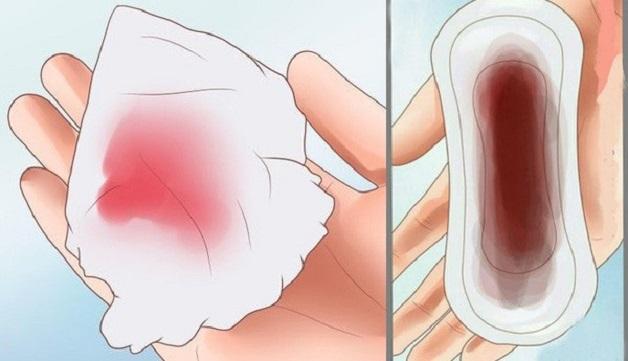 Xuất huyết âm đạo là một trong dấu hiệu của polyp tử cung