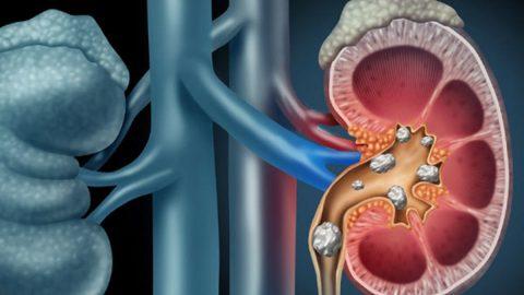 4 phương pháp phẫu thuật nội soi lấy sỏi điều trị sỏi tiết niệu
