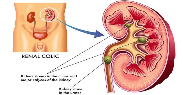 Sỏi thận và sỏi niệu quản là bệnh lý phổ biến nhất của sỏi đường tiết niệu