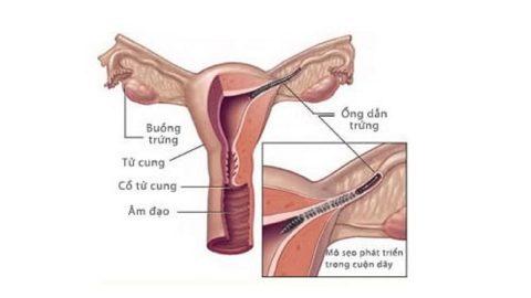 Các chị em phụ nữ đã biết thông vòi trứng như thế nào?