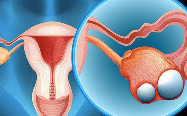 U bì buồng trứng, hay còn gọi là u nang bì buồng trứng, hay u quái buồng trứng, được tạo nên từ những tế bào mầm biệt hóa trong buồng trứng.