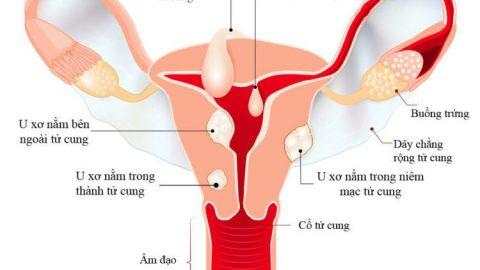 U xơ tử cung có nguy hiểm không? Gây ra những biến chứng gì?