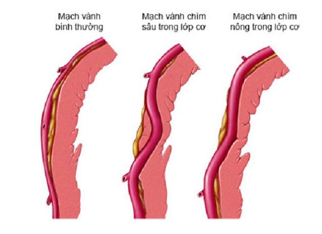 Hình ảnh cầu cơ động mạch vành