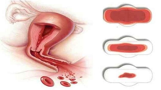 Rong kinh là một trong những dấu hiệu viêm cổ tử cung