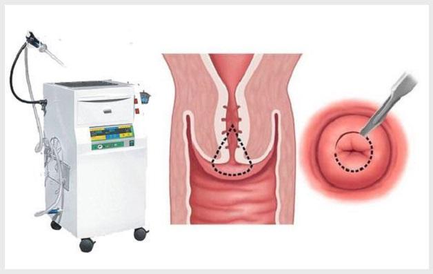 Dao Leep là một trong phương pháp điều trị viêm cổ tử cung hiệu quả