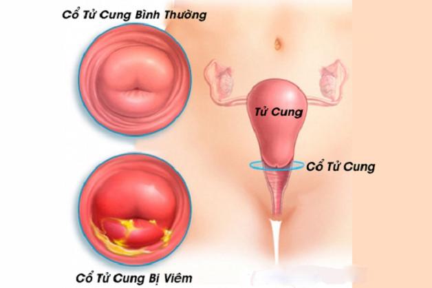 Hiện nay, rất nhiều bà mẹ bỉm sữa phải đối mặt với viêm cổ tử cung sau sinh.