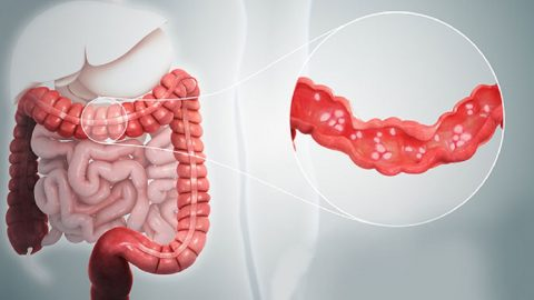 Viêm đại tràng là bệnh gì và cách điều trị hữu hiệu nhất?