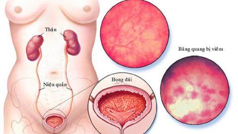 Thông tin về bệnh viêm đường tiết niệu viêm bàng quang