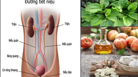 Viêm tiết niệu uống nước gì để hỗ trợ điều trị bệnh?