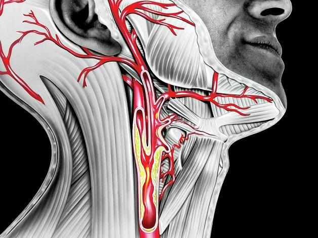 Xơ vữa động mạch cảnh là hiện tượng hình thành các mảng xơ vữa ở động mạch đưa máu từ tim lên nuôi não